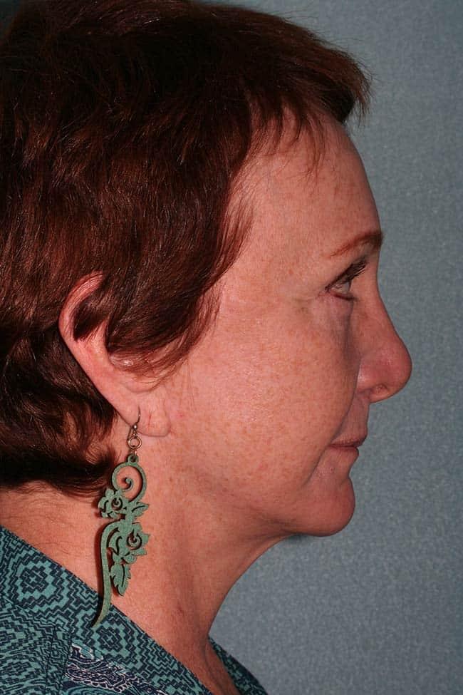 Mini Facelift Post Surgery