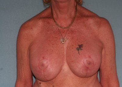 CM Post Breast Implant exchange and lift 1