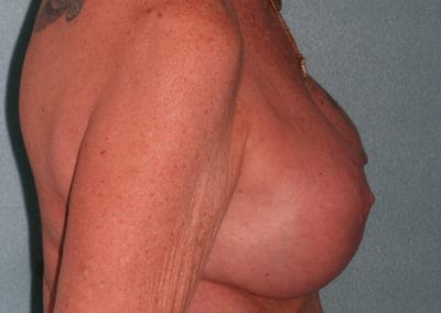 CM Post Breast Implant exchange and lift 2