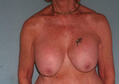 CM Pre Breast Implant exchange and Lift 1