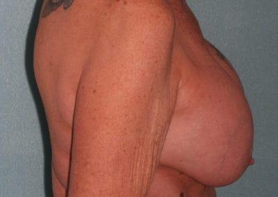 Pre Breast Implant exchange