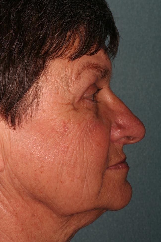 Post Op upper eyelid lift