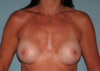 LS-Post-Op-Breast-Aug-1a