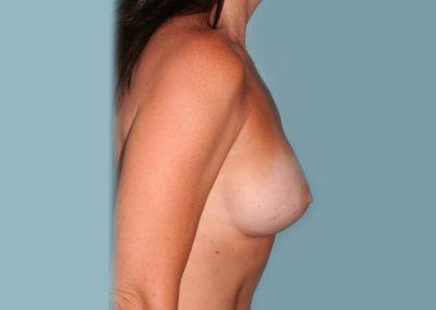 LS-Post-Op-Breast-Aug-2a