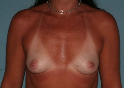 LS-Pre-Op-Breast-Aug-1a