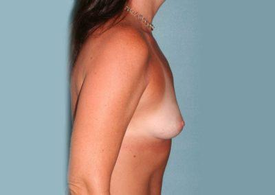 Breast Augmentation Pre Surgery