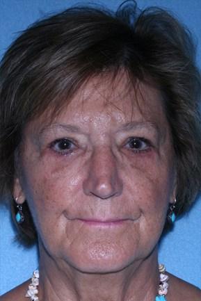 Blephroplasty (Upper & Lower Eye Lid Surgery)