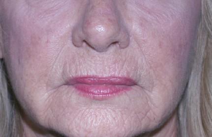 CO2 Fractional Laser Facial Resurfacing