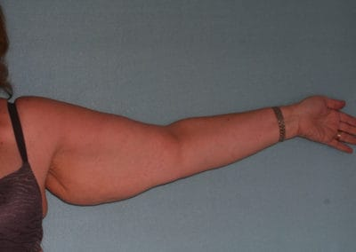 Post Bi-lateral Arm Lift