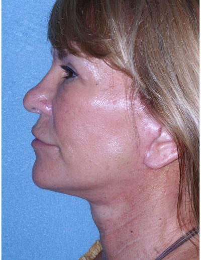 After Mini Facelift and Upper Eyelid Surgery Profile View