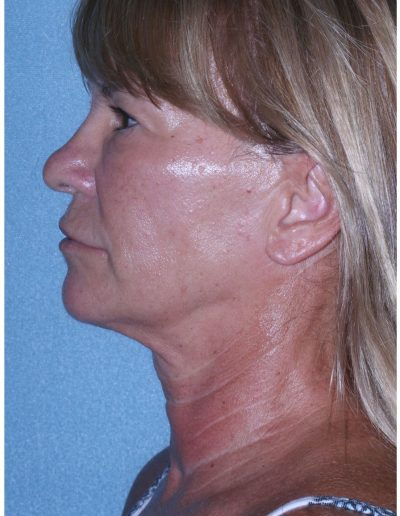 Before Mini Facelift and Upper Eyelid Surgery Profile View